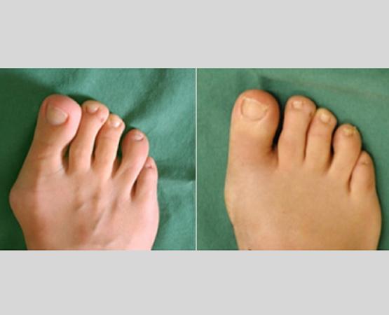 Foto eines Fußes vor und nach der Behandlung durch Dr. Altmann - Fußchirurg beim Handzentrum Köln
