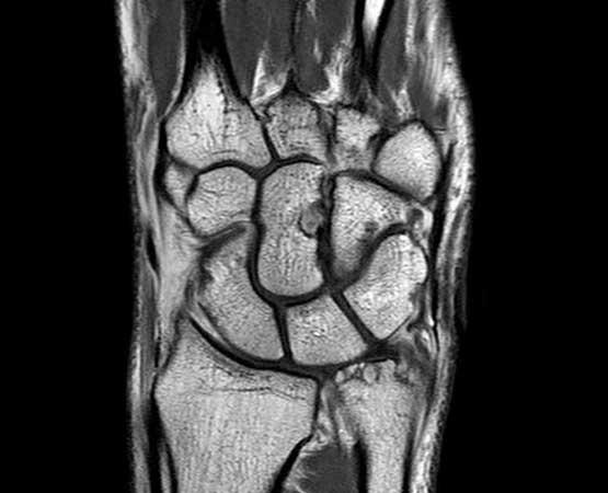Rüntgenbild einer Handwuzel - Handgelenkschirurgie und Handwurzelchirurgie im Handzentrum Köln